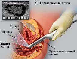 Узи вагинальным датчиком