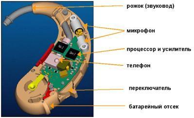 Слуховые аппараты. устройство