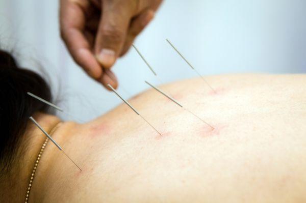 Лечение остеохондроза шейного отдела иглоукалыванием